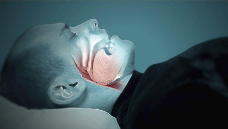 Uyku Apnesi Sendromu Uykuda Ölümlere Neden Olabiliyor